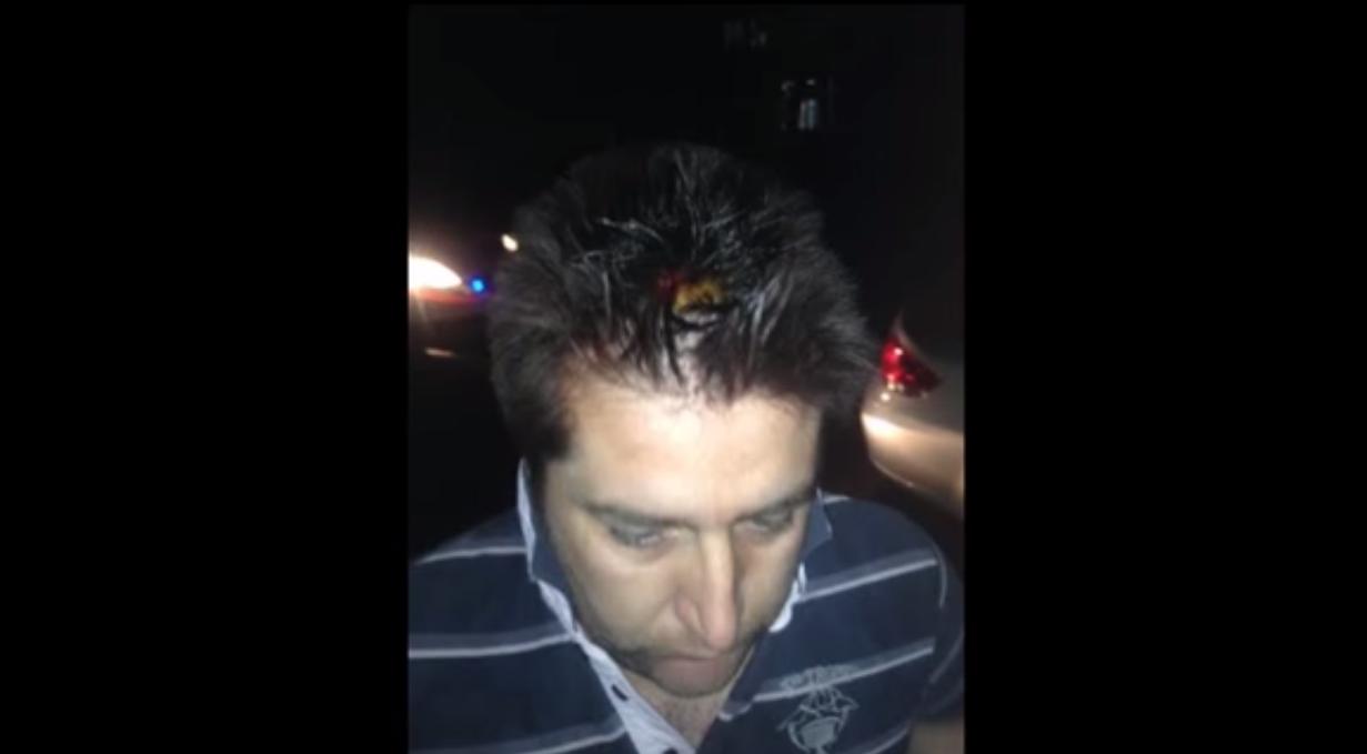Со шипки нападнат и претепан новинарот Саше Ивановски - Политико
